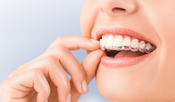 orthodontie traitement invisalign
